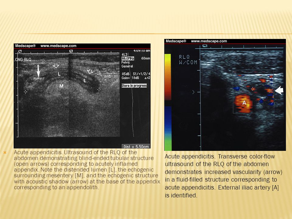 Acute appendicitis. Ultrasound of the RLQ of the abdomen demonstrating blind-ended tubular structure (open arrows) corresponding to acutely inflamed appendix. Note the distended lumen [L], the echogenic surrounding mesentery [M], and the echogenic structure with acoustic shadow (arrow) at the base of the appendix corresponding to an appendolith.